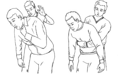 Heimlich Maneuver Day – Learn how to save a life